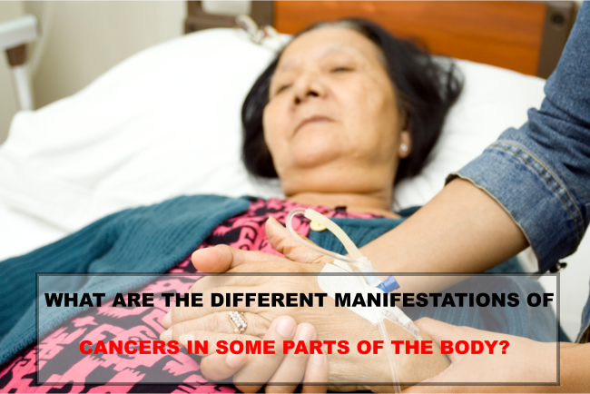 WHAT ARE THE DIFFERENT MANIFESTATIONS OF CANCERS IN SOME PARTS OF THE BODY?