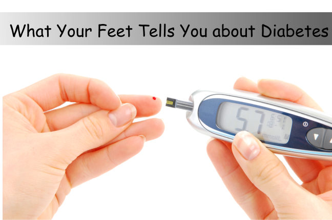 What Your Feet Tells You about Diabetes